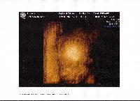 4ème mois: test sur la trisomie Mini_0705200833176902582359